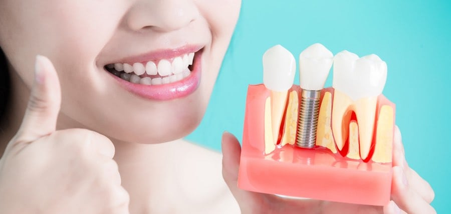 The Benefits of Dental Implants and Why They are Effective