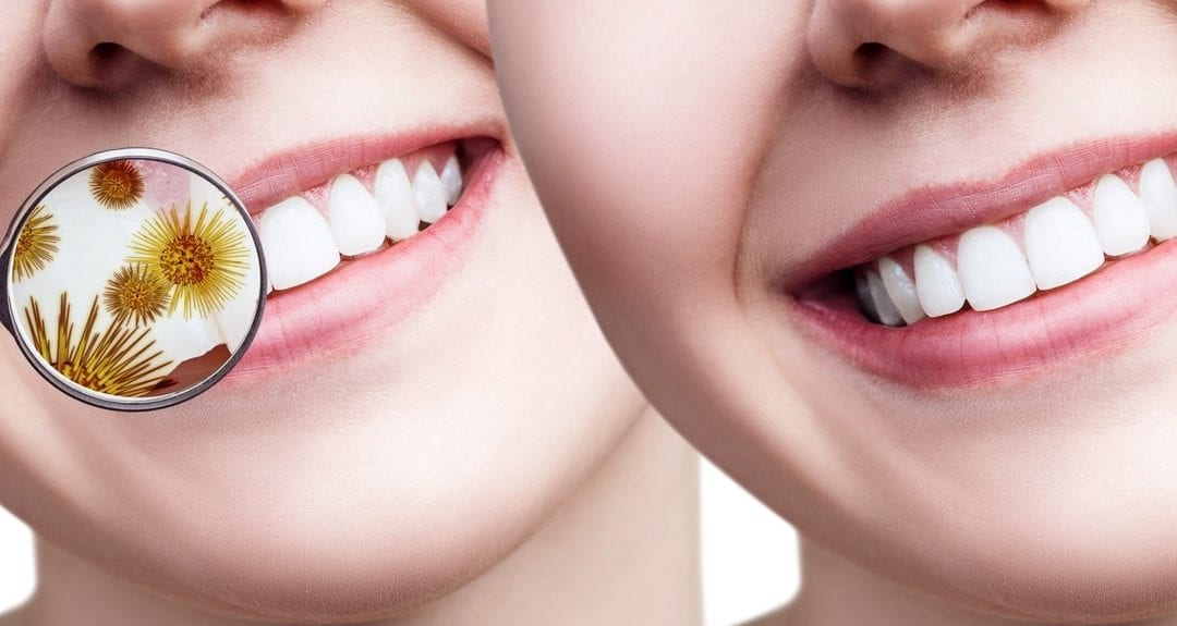 Receding Gums: Causes, Treatment, Prevention