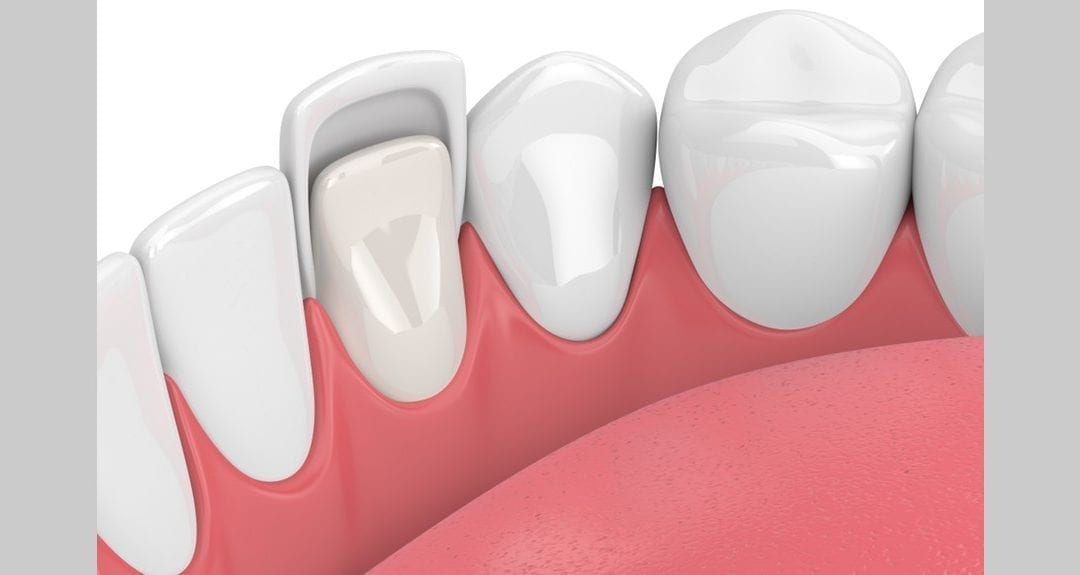 Everything You Need to Know About Dental Veneers