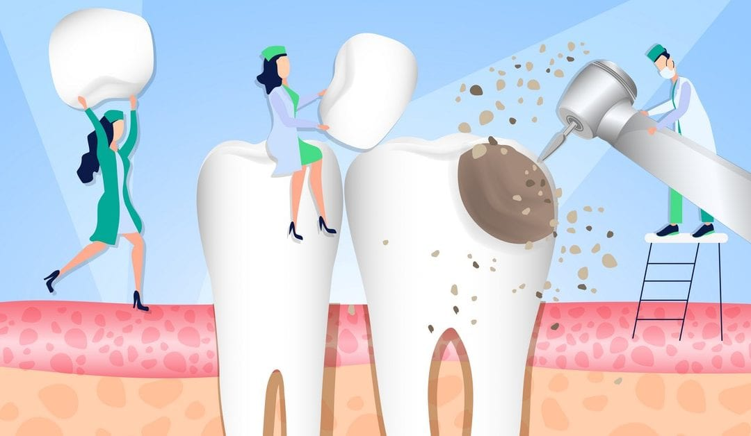 9 Medications, Side Effects and Damage To Your Teeth