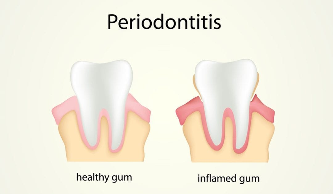 10 Natural Ways To Help Prevent Periodontal Disease