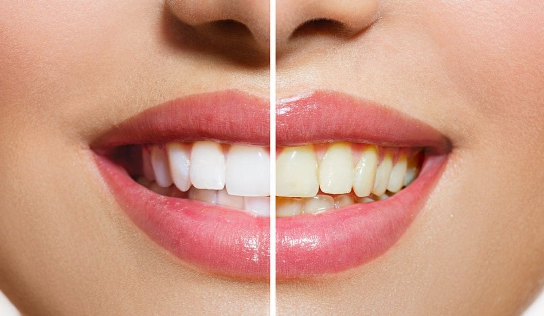 Why Are My Teeth Yellow, Transparent Or Weak?