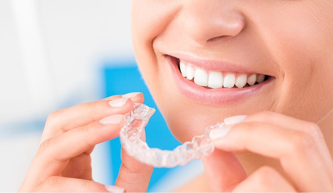 All About Invisalign Clear Aligners, Process, Cost & More